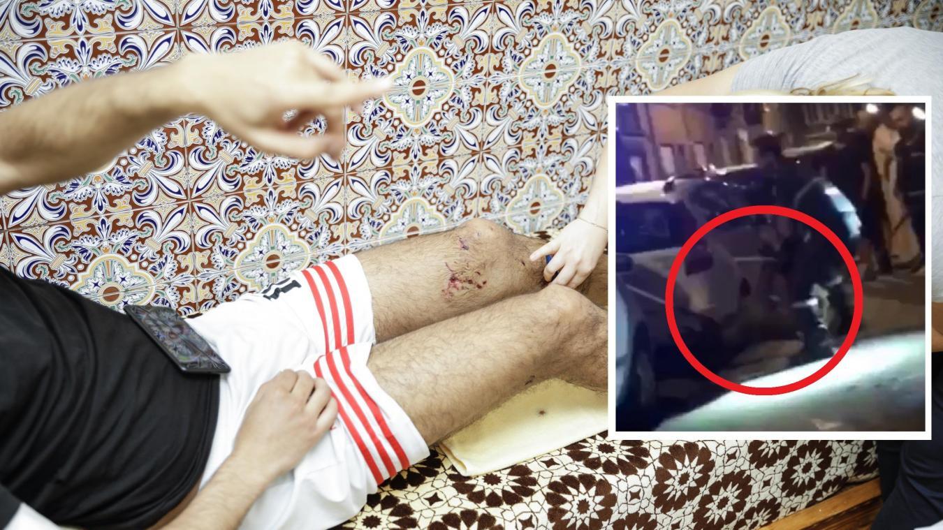 Bruxelles : Un jeune homme attaqué par deux énormes chiens à Anderlecht: «Sans l'aide des voisins, je serais