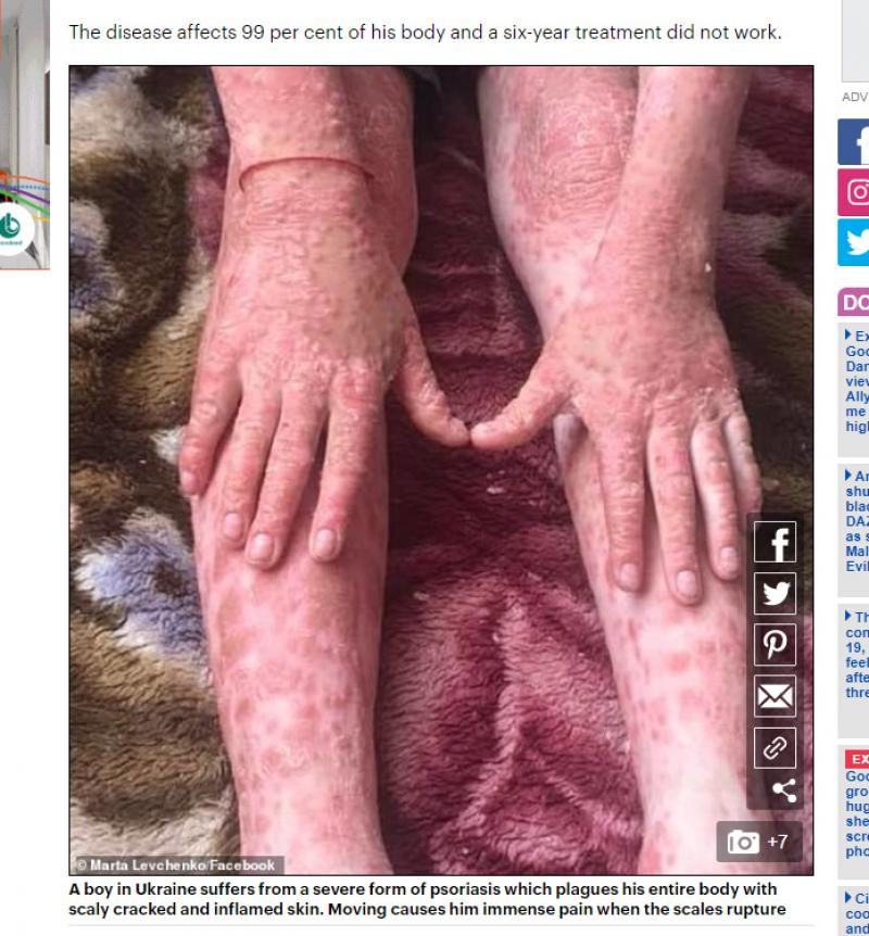 remede psoriasis