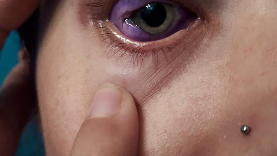 son tatouage dans l'œil vire au drame: une mannequin a risqué de