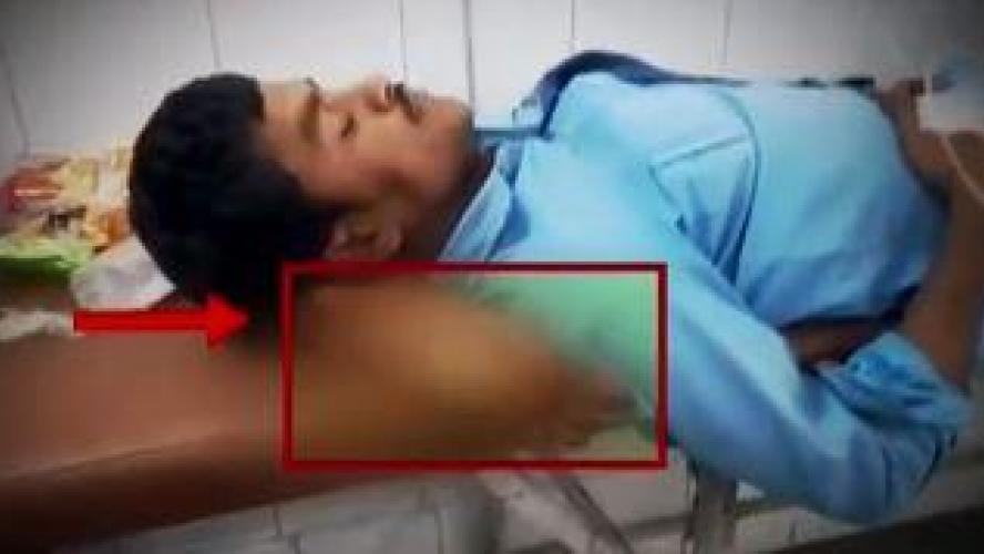 La jambe amputée d'un patient lui sert d'oreiller — Inde