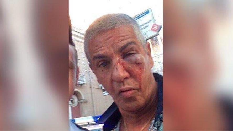 L'acteur Samy Nacéri blessé dans une bagarre en Russie