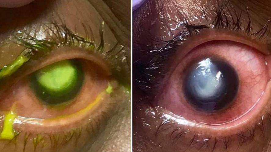 """Résultat de recherche d'images pour """"fluo chez l'ophtalmo"""""""