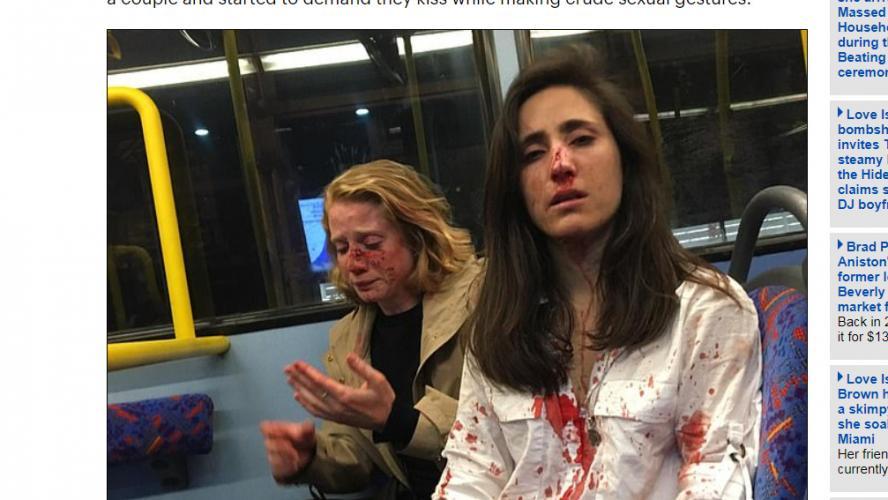Un couple de femmes est violemment agressé après avoir refusé de s'embrasser