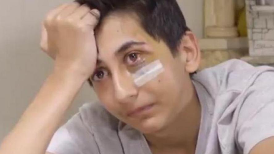 Bondy: Gabriel, 14 ans et blessé à l'œil, raconte son interpellation