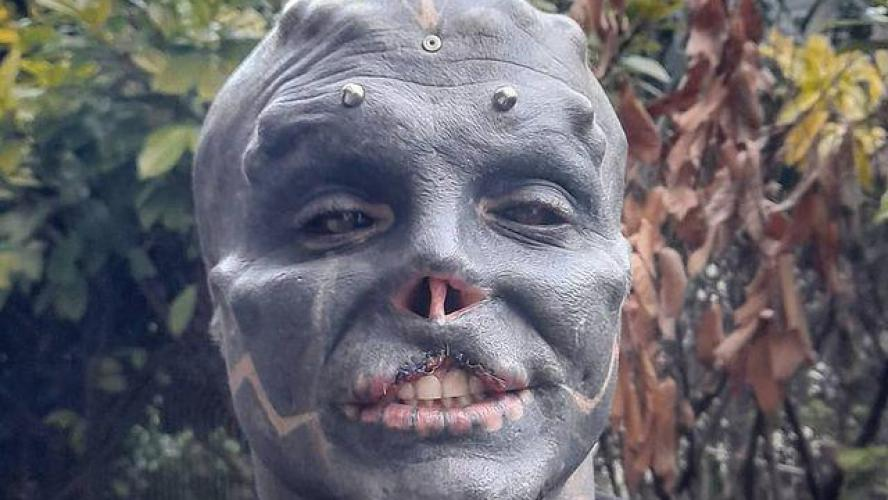 «Black Alien» n'a pas fini de se transformer: après le nez et les oreilles, le Français se fait retirer la lèvre supérieure (photos)