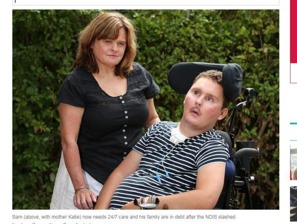 Un ado paralysé après avoir gobé une limace